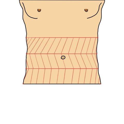 Abdominal Stiffness